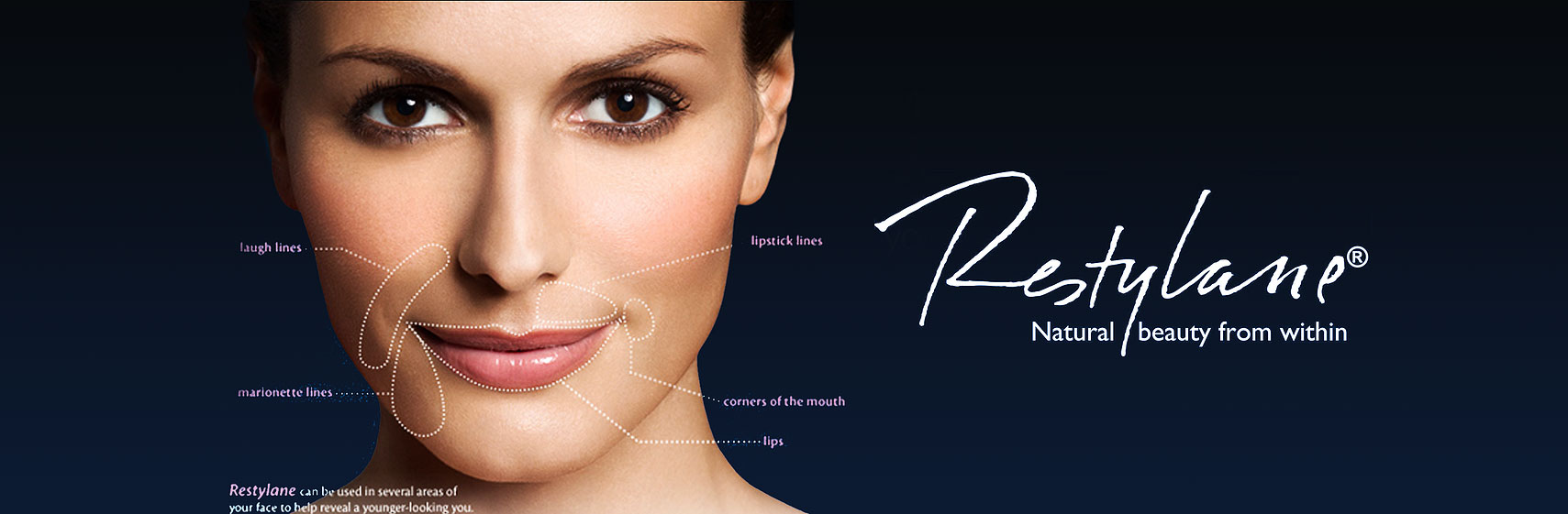 Restylane® - Natural Beauty from within