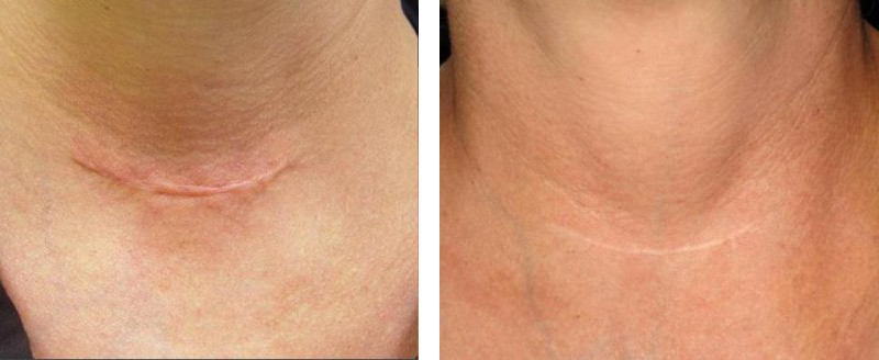 Skin Resurfacing Before and After | Pacific Palisades Plastic Surgery
